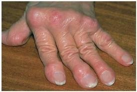 Pikkelysömör láb tünetei és kezelése