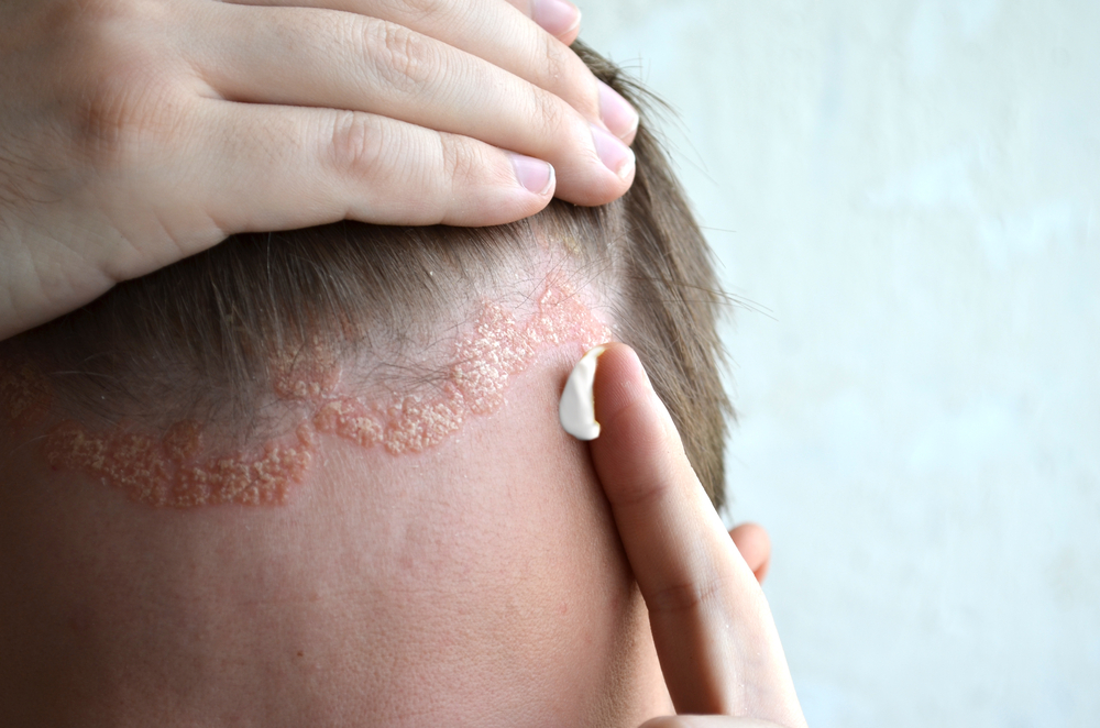 Ledertrexate psoriasis a fejbőrön