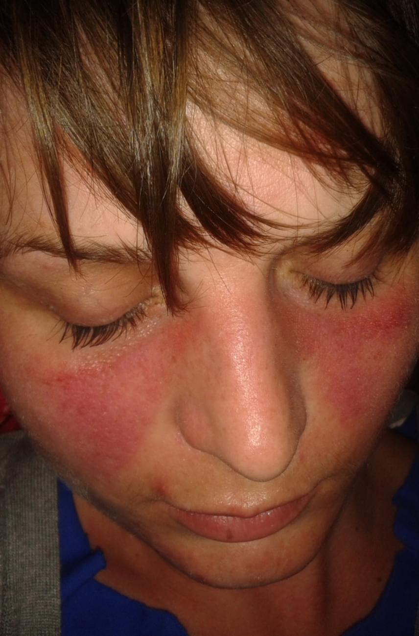 fekélyes vörös foltok az arcon)
