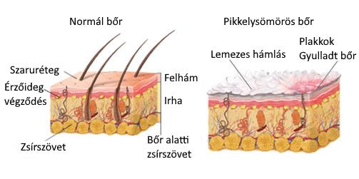boróka pikkelysömör kezelése