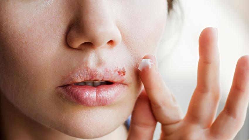 hogyan lehet megszabadulni az arcon jelentkező herpesz utáni vörös foltoktól vörös pikkelyes folt a könyökön