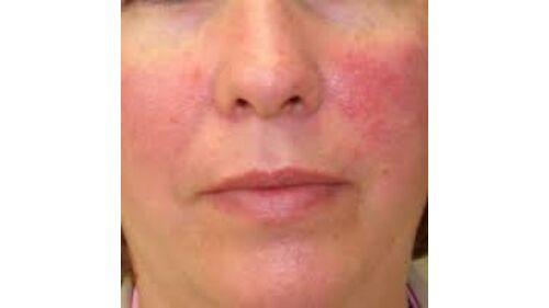 az arc pikkelysömörének kezelése otthon népi gyógymódokkal)