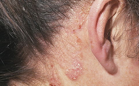 népi gyógymódok a szeborreás pikkelysömörhöz