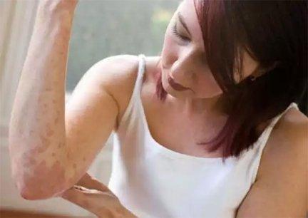 Pikkelysömör esetén fontos a páciens tudatossága