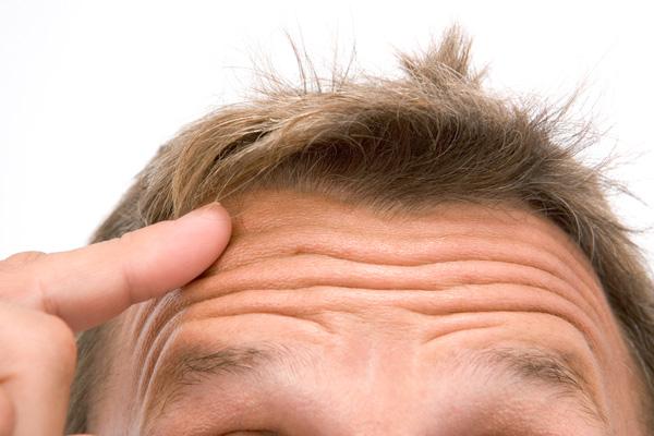 fejbőr psoriasis kezelése hormonok nlkl