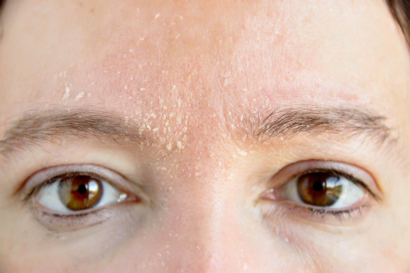 hogyan kell kezelni a vörös pelyhes foltokat a fején pikkelysömör kezelés kenőcs bőr sapka
