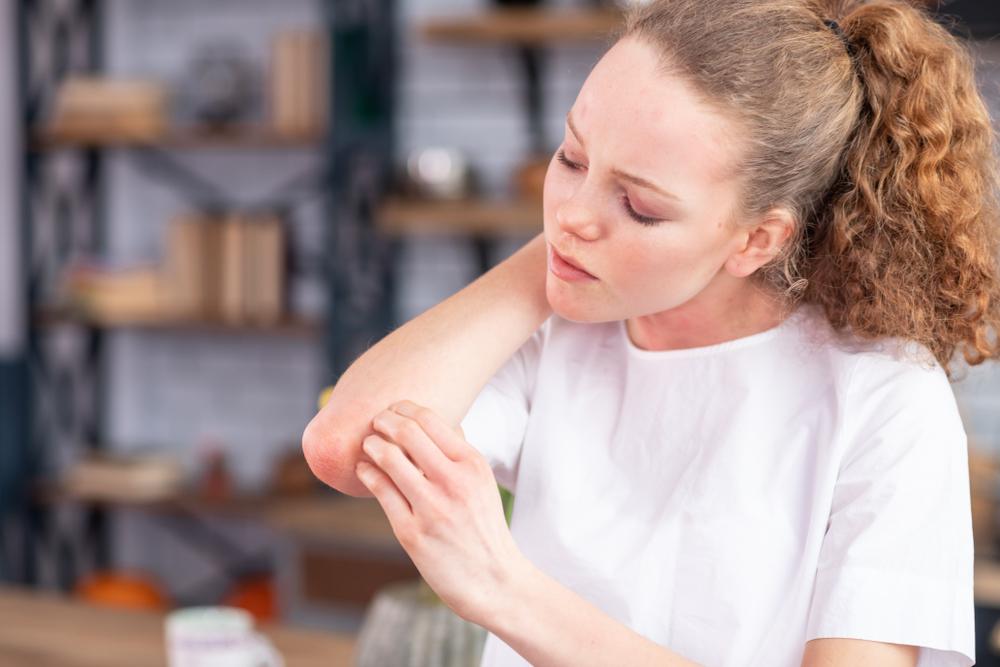 mi a pikkelysömör és hogyan lehet gyógyítani