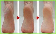 hogyan lehet eltávolítani a vörös foltokat a bőrkeményedés után