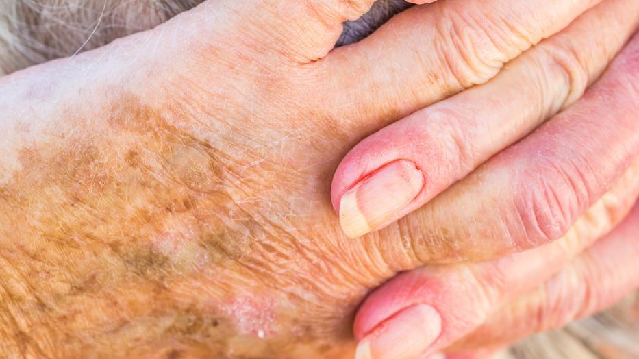 Hogyan lehet hatékonyan és gyorsan eltávolítani a vörös foltokat az akne után - Élelmiszer November
