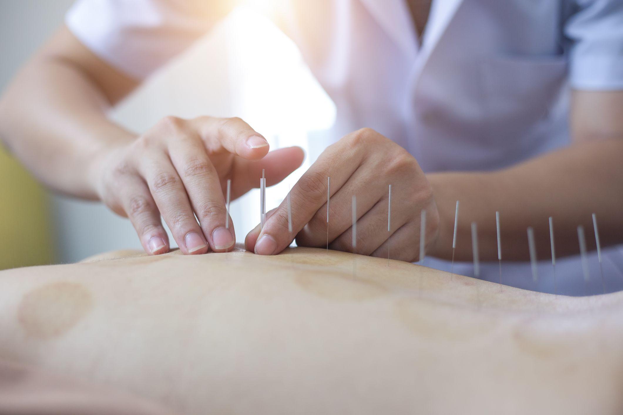 lózsír kezelése pikkelysömörhöz