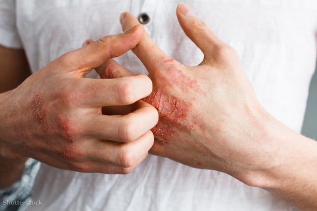 pikkelysömör kezelése szlovákiai bűzben bőrkiütés vörös foltok formájában felnőtteknél