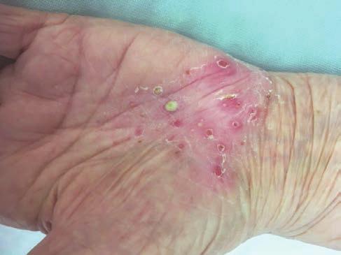 skin capom pikkelysömör kezelés reviews)