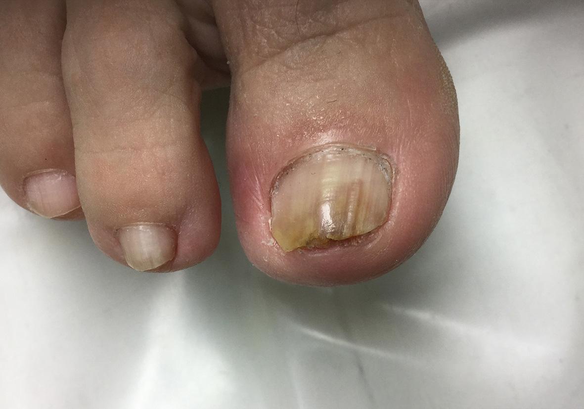 pikkelysömör és lábgomba kezelése