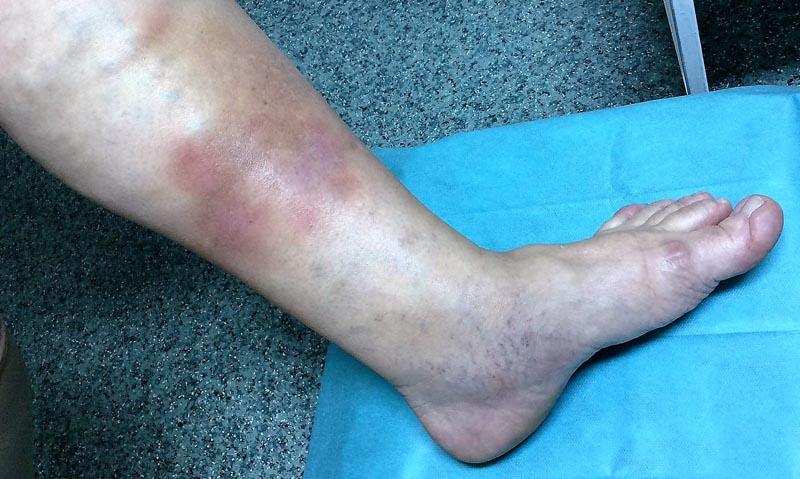 vörös foltok az alsó lábszáron duzzadt lábakon)