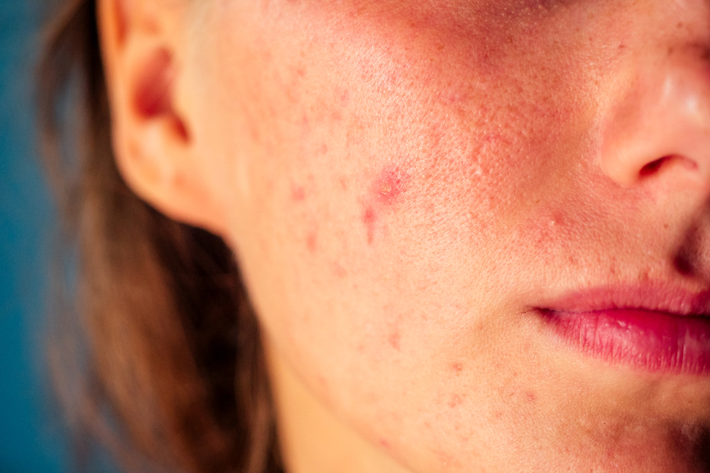 is plaque psoriasis an autoimmune disease