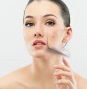 Az arcon élő atka is okozhat pattanásokat? - EgészségKalauz
