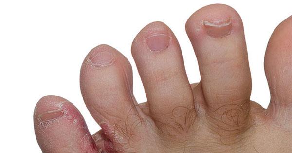 vörös foltok az ujjakon és a lábujjakon)