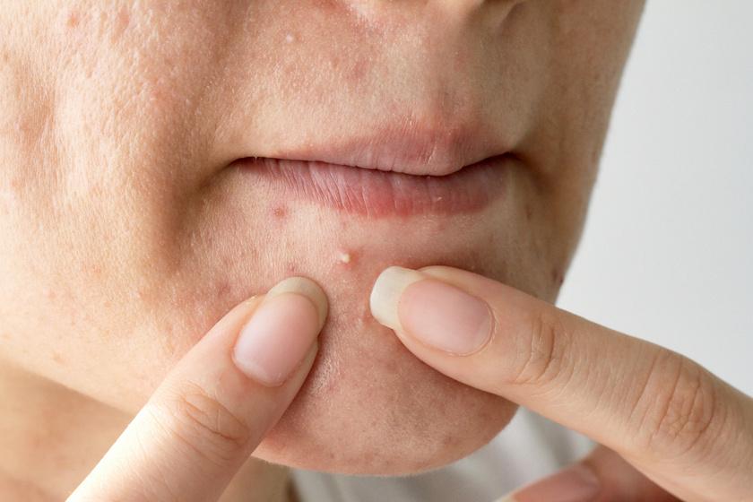 vörös foltok az arcon és hámlasztó kezelés gygyszerek a pikkelysmr ellen a fejn