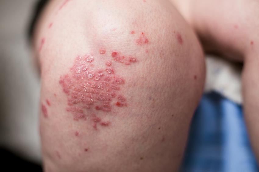 zúzódás pikkelysömör kezelése piros foltok a kezeken nyáron